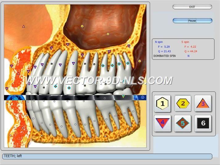 vector 8d 9d nls   software (9)